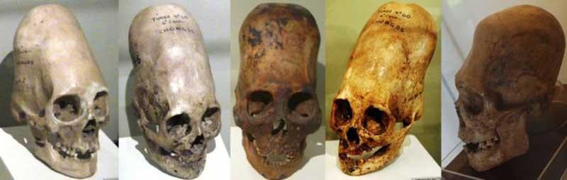 cranii-alungite-paracas800.jpg